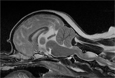 후두골 이형성 증후군 MRI