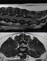 척수 종양 MRI